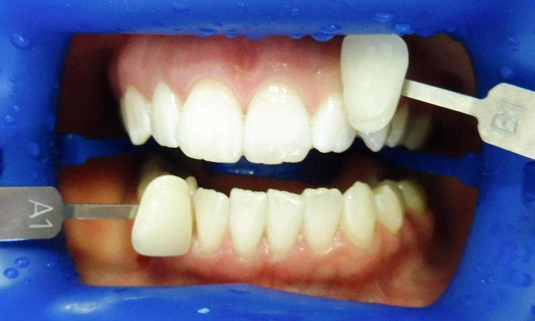 In-Chair-Whitening-After-Image