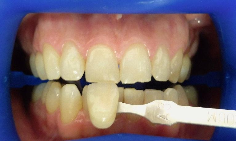 In-Chair-Whitening-Before-Image